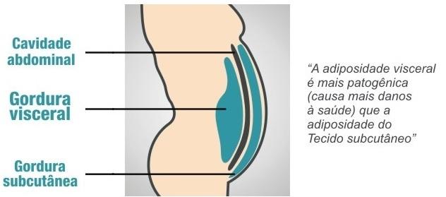 Gordura Visceral e Subcutânea – Diferenças