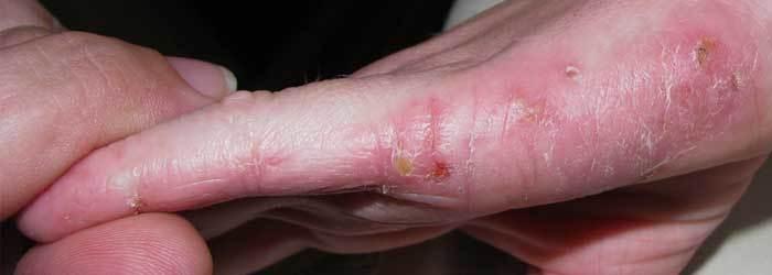 Psoriase e Eczema - Diferença e Como Tratar