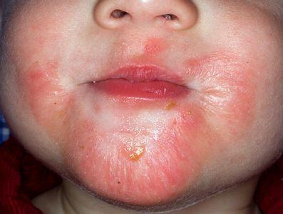 Psoriase e Eczema - Diferença e