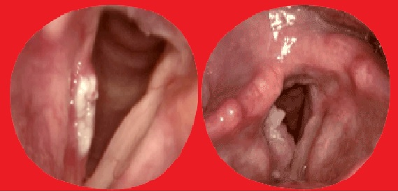 Calo Nas Cordas Vocais - Como Identificar