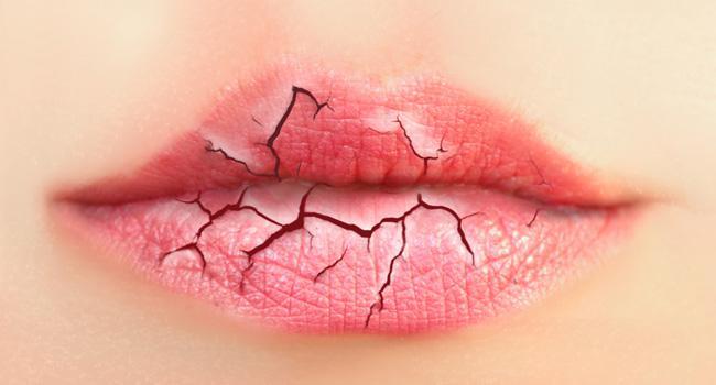 Lábios Rachados – Como Tratar