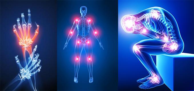 artrite-causas-sintomas-e-como-tratar