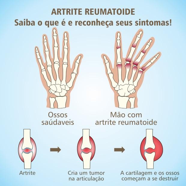 artrite-causas