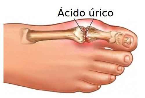 acido-urico-remedio-caseiro