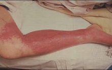 Celulite Infecciosa – Causas, Sintomas e Tratamento