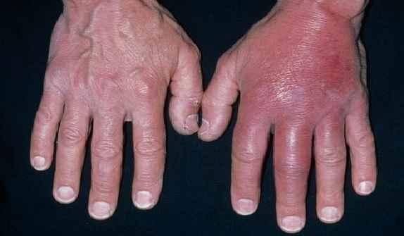 celulite-infecciosa-causas-sintomas-e-tratamento