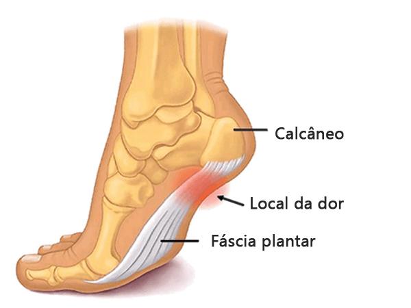 fascite-plantar-causas-e-sintomas
