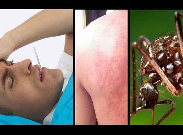 febre-mayaro-causas-e-sintomas