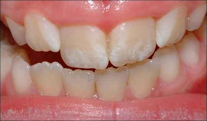 Fluorose Dentária Manchas Nos Dentes – Como Evitar