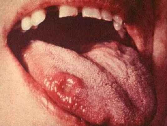 sifilis-transmissao-cancro