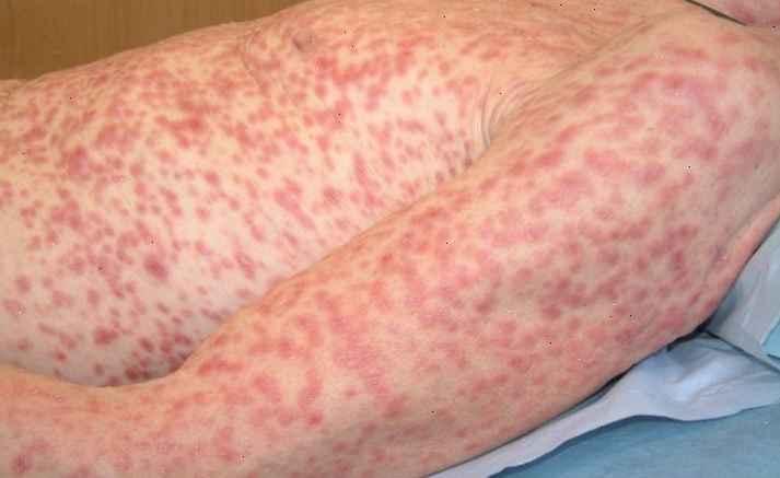 sifilis-transmissao-e-sintomas