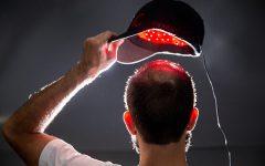 Boné Com LED – Tratamento de Calvície