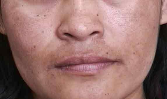 Manchas Escuras No Buço – Como Prevenir e Tratar