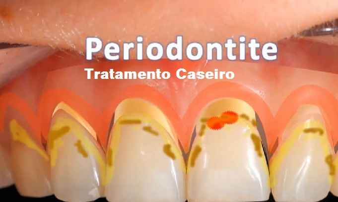 Periodontite – Tratamento Caseiro