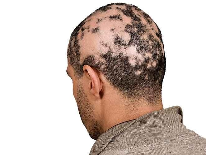 Alopecia - Causas e Tratamento