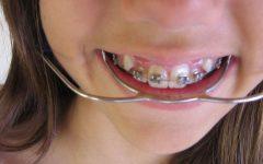 Aparelho Nos Dentes – O Que Não Comer