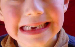 Bruxismo Infantil – Causas