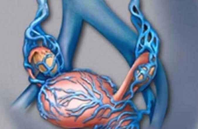 Síndrome de Congestão Pélvica - Sintomas e Tratamento