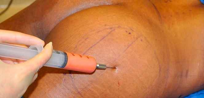 Lipoenxertia Preenchimento Com Gordura – Como Funciona