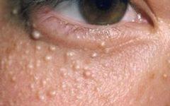 Milium Sebáceo na Pele – Tipos e Causas