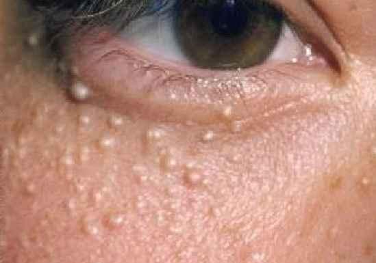 Milium Sebáceo na Pele - Tipos e Causas
