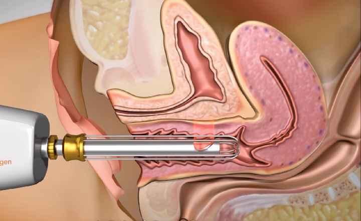 Rejuvenescimento Genital – Procedimento Laser