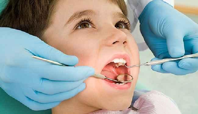 Selante Dental Para Crianças – Benefícios