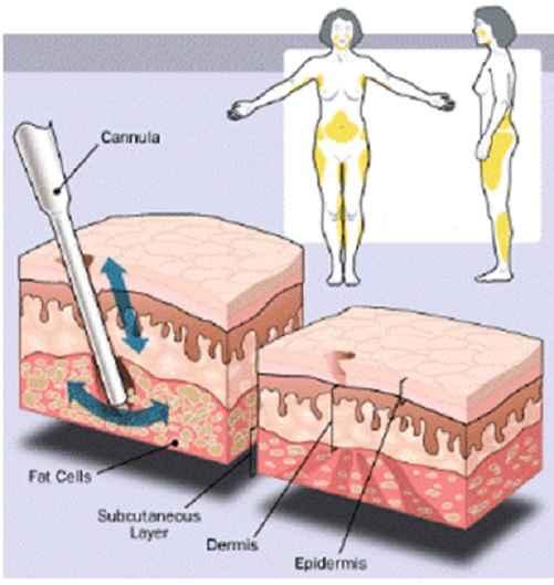 Vibrolipoaspiração – Como Funciona