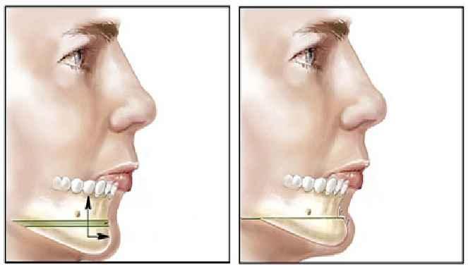 Mentoplastia Cirurgia Plástica no Queixo – Cuidados
