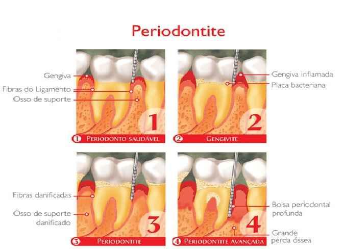 Periodontite – Causas, Sintomas e Como Tratar