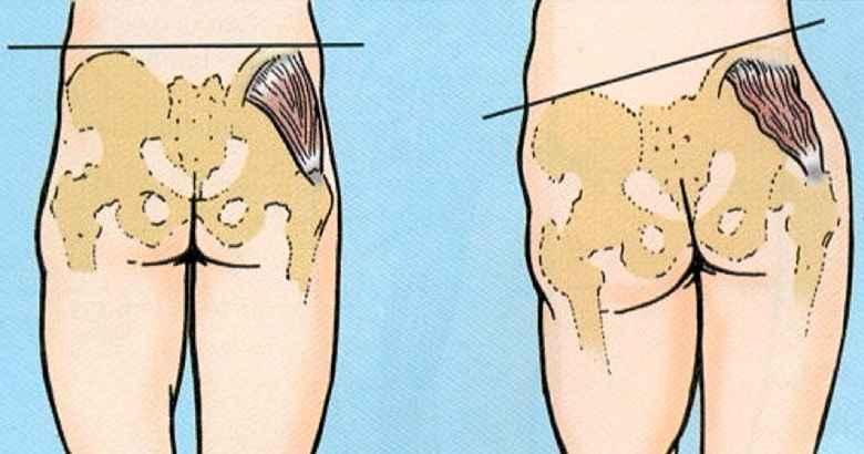 Síndrome da Amnésia do Glúteo – Causas e Como Identificar