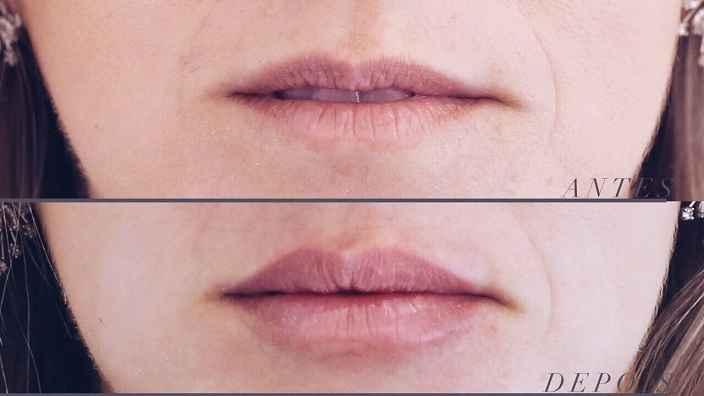 Preenchimento Labial – Como Funciona