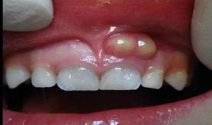 Consultar Um Dentista – Como Saber a Hora Certa