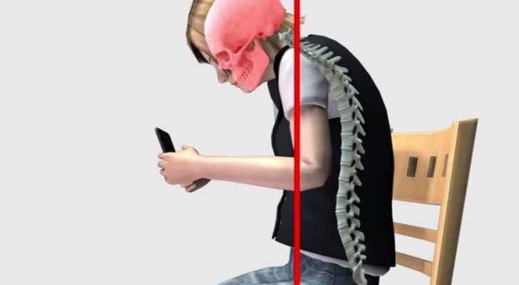 Síndrome Text Neck – Como Evitar