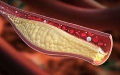 Artérias Entupidas – Sinais, Como Evitar