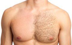 Depilação Masculina – Benefícios