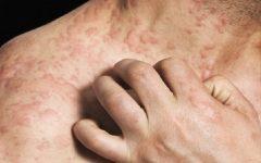 Intolerância e Alergia Alimentar – Diferenças
