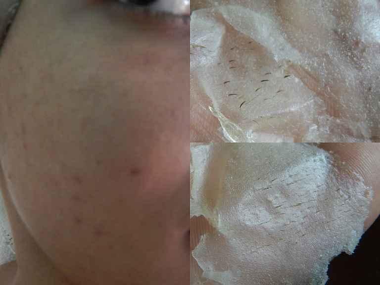 Máscara de Gelatina Elimina Cravos - Receita