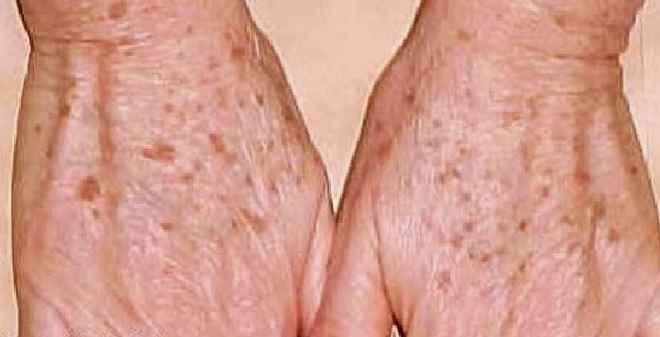 Manchas Escuras Nas Mãos – Tratamento Natural