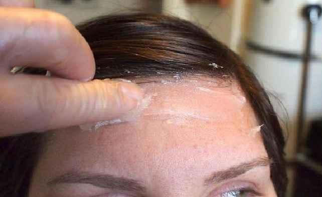 Tinta de Cabelo na Pele – Dicas Como Retirar