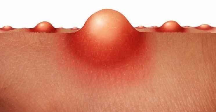 Furúnculo – Causas, Sintomas e Tratamento
