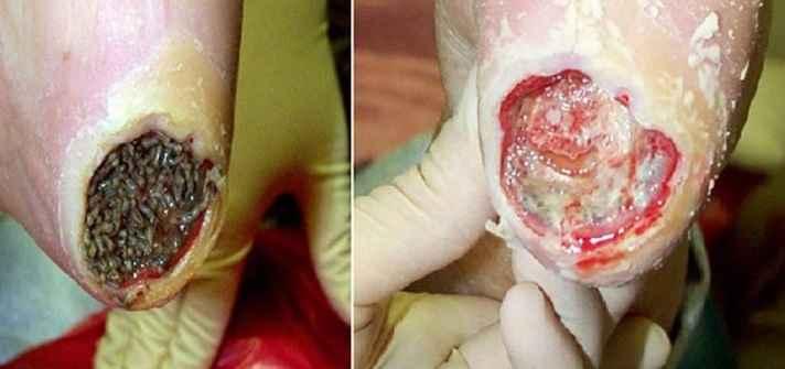 Calcanhar de Maracujá – Causas e Sintomas