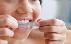 Fitas de Clareamento Dental – Como Funcionam