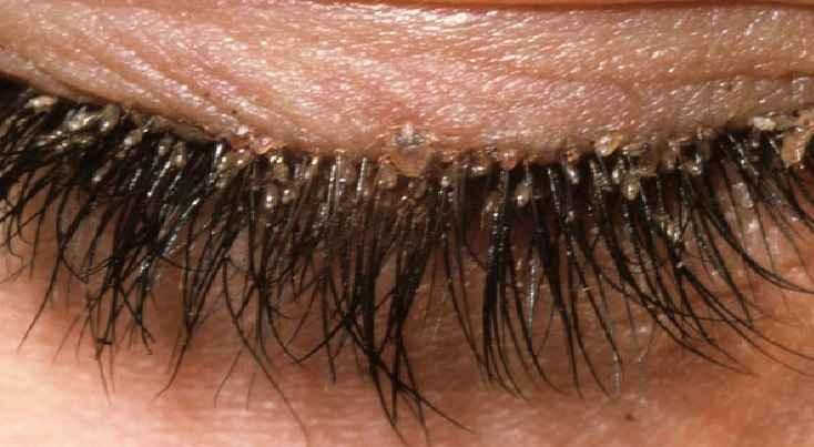 Piolho Pubiano - Sintomas e Tratamento
