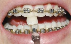 Clarear os Dentes – Momento Certo