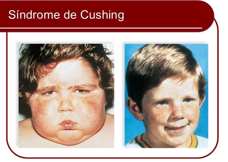 Síndrome de Cushing – Sintomas