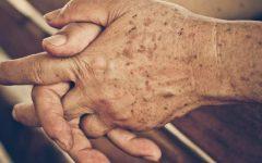 Machas Nas Mãos – Tipos