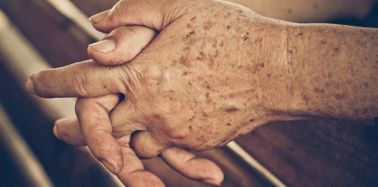 Manchas Nas Mãos – Tipos