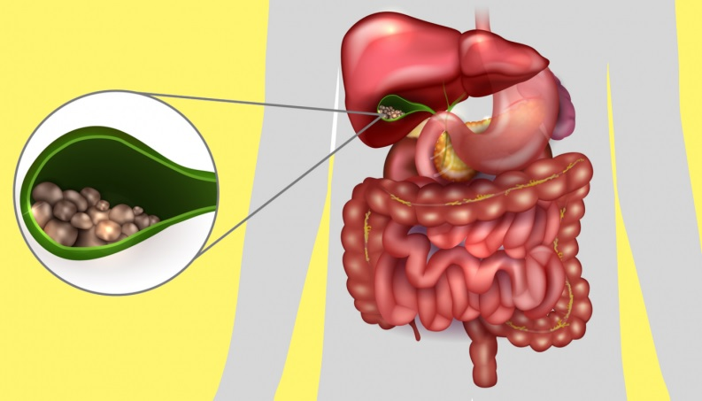 Prevenir Pedras na Vesícula – Alimentos Indicados