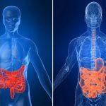 Doença de Crohn – Sintomas e Causas